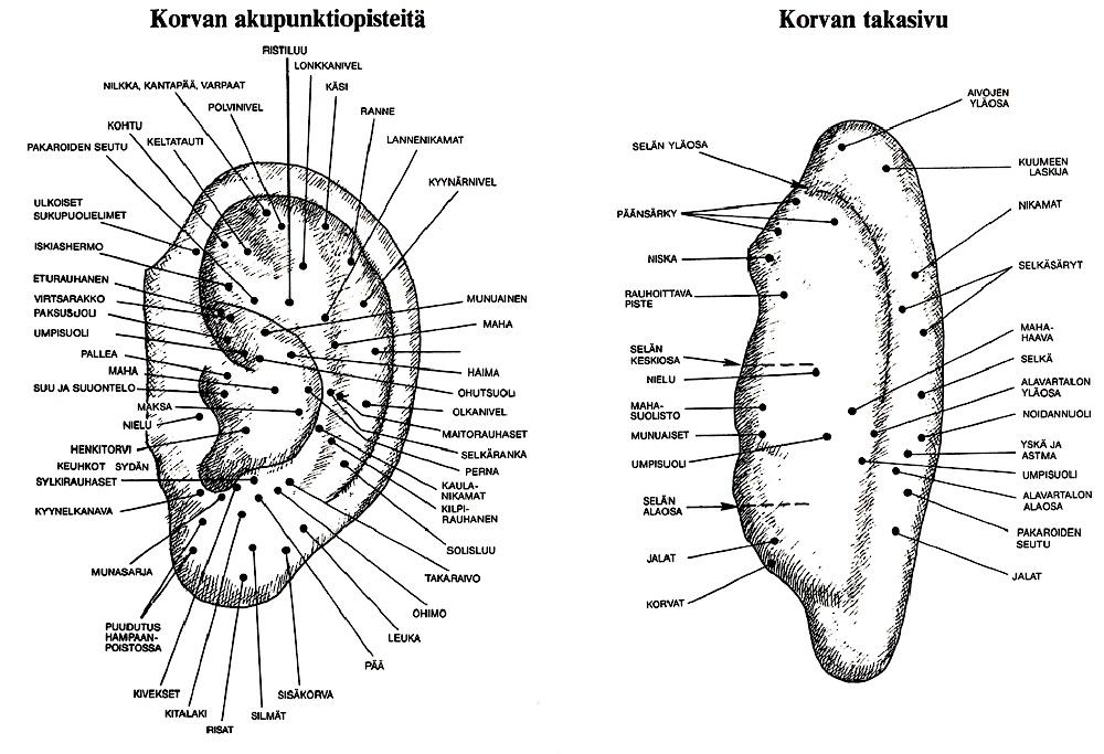 Korva Akupunktio